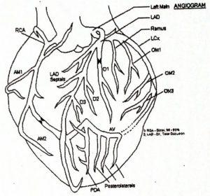 Ez az illusztráció nem a kardiológus rajza, hanem az angiogram vizsgálat leletből származik.