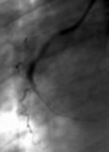 Később, a beavatkozás során egyszer-kétszer a bal alsó képernyőrészt láthattam. Ott feltűnt a szívemben lévő megfestett erek képe. A többi részét a képernyőnek eltakarták más készülékek, de egy pillanatra láttam azért a vérnyomásom, a pulzusom, s a szaturáció mérési eredményeit.